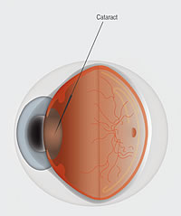 Cataract_Anatomy